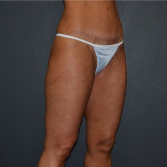 35-44 year old woman treated with Thigh Lift after significant weight loss 1844598