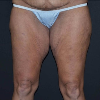 35-44 year old woman treated with Thigh Lift after significant weight loss before 1844598