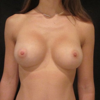 18-24 year old woman treated for Breast Augmentation after 1525459