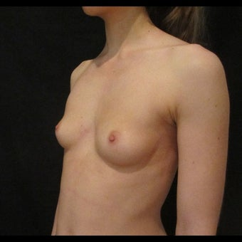 18-24 year old woman treated for Breast Augmentation 1525459