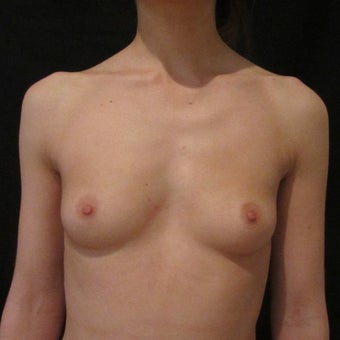 18-24 year old woman treated for Breast Augmentation