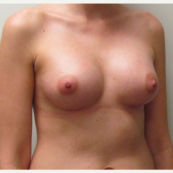 25-34 year old woman treated with Sientra Breast Implants after 2985293