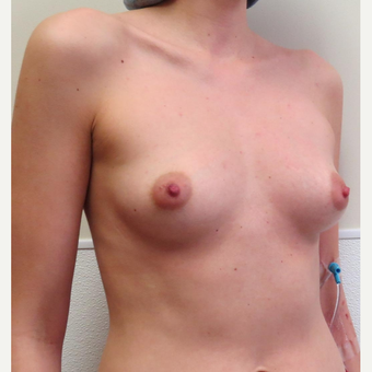 25-34 year old woman treated with Sientra Breast Implants before 2985293