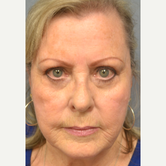 65-74 year old woman treated with Eyelid Surgery after 3770631