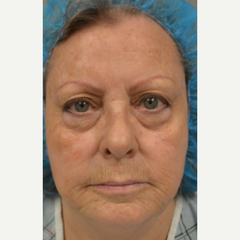 65-74 year old woman treated with Eyelid Surgery before 3770631