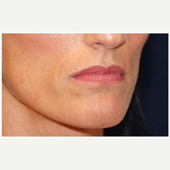 35-44 year old woman treated with Cheek Augmentation before 1569176
