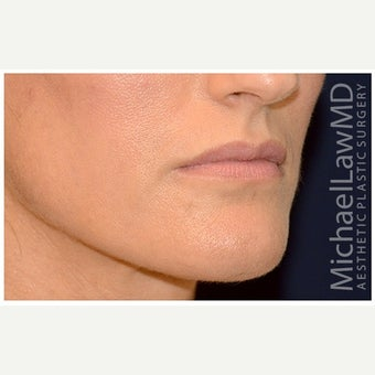 35-44 year old woman treated with Cheek Augmentation after 1569176
