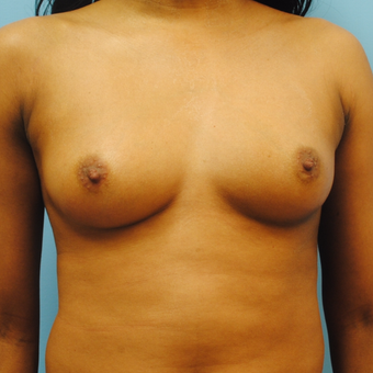 25-34 year old woman treated with Breast Augmentation before 3054573