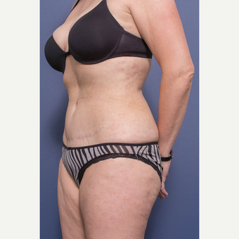 45-54 year old woman treated with Tummy Tuck after 3739614
