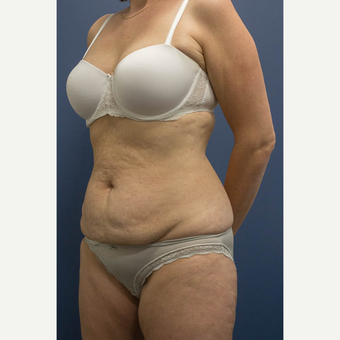 45-54 year old woman treated with Tummy Tuck before 3739614