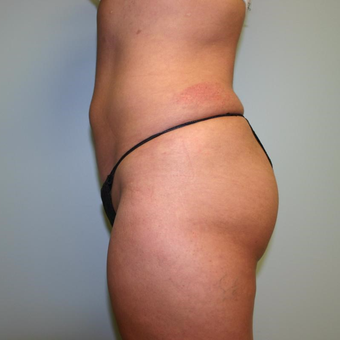 46 year old woman treated with Liposuction after 3442250