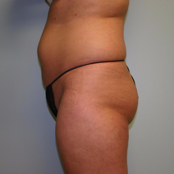 46 year old woman treated with Liposuction before 3442250