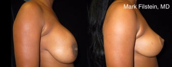 45-54 year old woman treated with Breast Lift before 2993802
