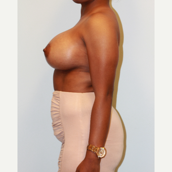 25-34 year old woman treated with Breast Augmentation after 3162993