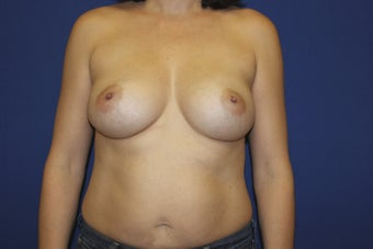 42 year old patient diagnosed with breast cancer