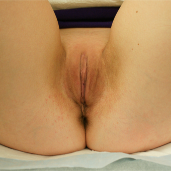 35-44 year old woman treated with Labiaplasty after 3129427