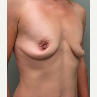 35-44 year old woman treated with Breast Augmentation before 2730293