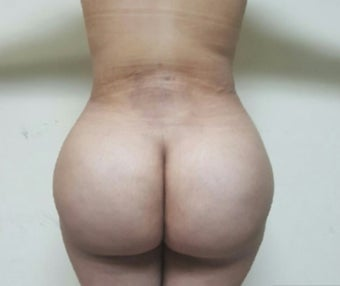 25-34 year old woman treated with Butt Augmentation after 3492373