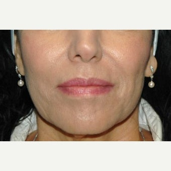 65-74 year old woman treated with Juvederm after 2661914
