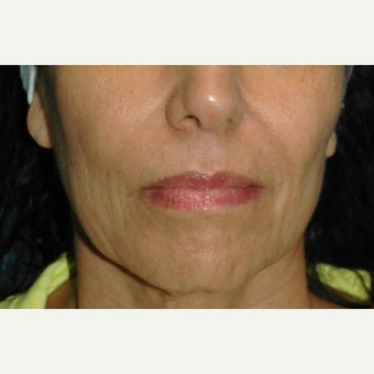 65-74 year old woman treated with Juvederm before 2661914