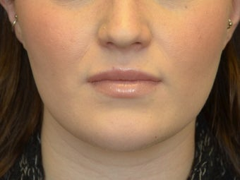 Buccal Fat Removal & Botox Jaw Slimming after 1166426