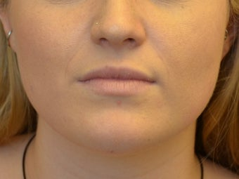 Buccal Fat Removal & Botox Jaw Slimming before 1166426