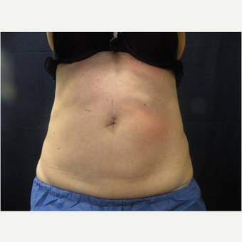 55-64 year old woman treated with CoolSculpting after 3680875