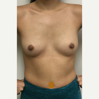 25-34 year old woman treated with Breast Augmentation before 3531074