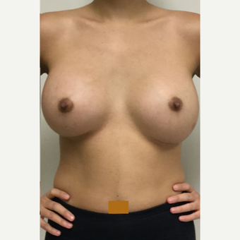 25-34 year old woman treated with Breast Augmentation after 3531074