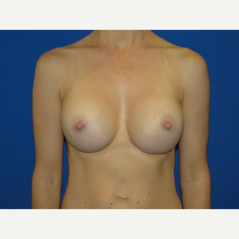 350 cc Silicone Breast Implants after 3738793