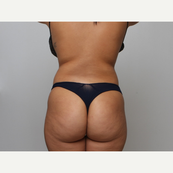BBL, Back & Flanks Lipo, Smart Lipo High Definition Muscle Etching, Breast Implants before 2379290