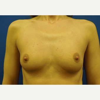 35-44 year old woman treated with Breast Augmentation before 3333087