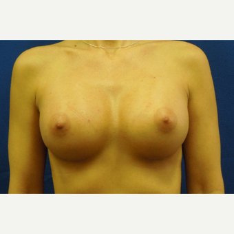 35-44 year old woman treated with Breast Augmentation after 3333087