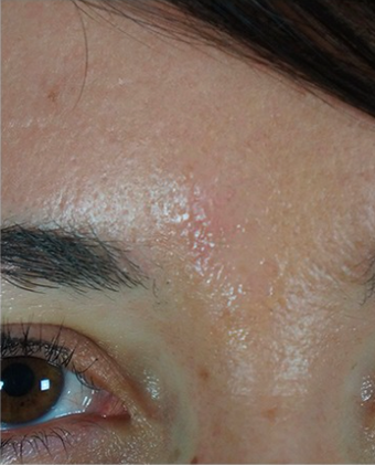 25-34 year old woman treated with Mole Removal after 2465296