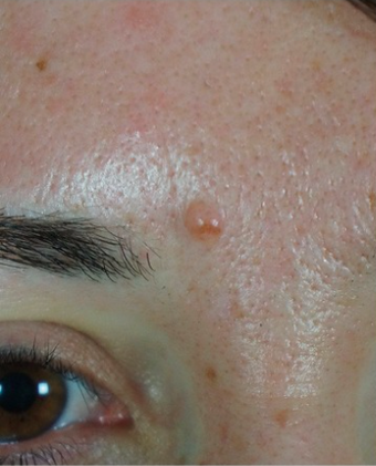 25-34 year old woman treated with Mole Removal before 2465296