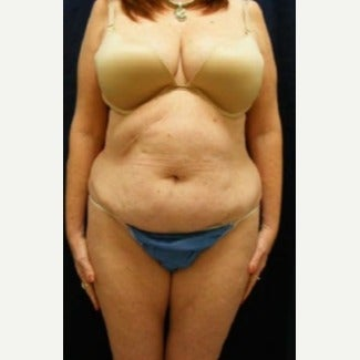Tummy Tuck before 1597691