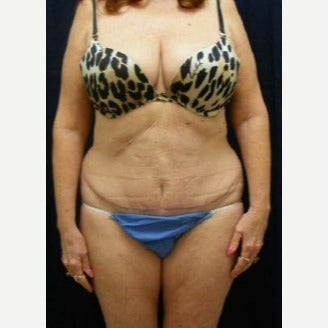 Tummy Tuck after 1597691