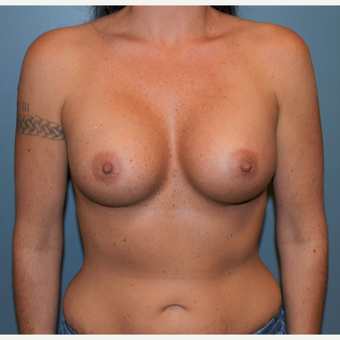 35-44 year old woman treated with Breast Augmentation after 3712170