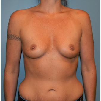 35-44 year old woman treated with Breast Augmentation before 3712170
