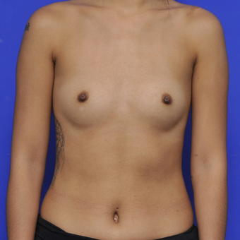 25-34 year old woman treated with Breast Augmentation before 3464039