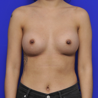 25-34 year old woman treated with Breast Augmentation after 3464039