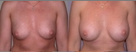 Breast Augmentation before 432941