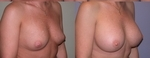 Breast Augmentation after 432941