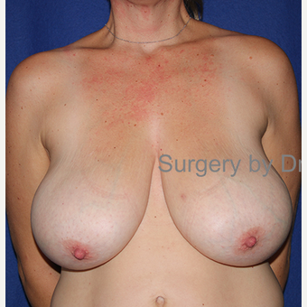 35-44 year old woman treated with Breast Reduction before 3432351