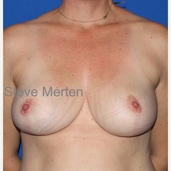 35-44 year old woman treated with Breast Reduction after 3432351