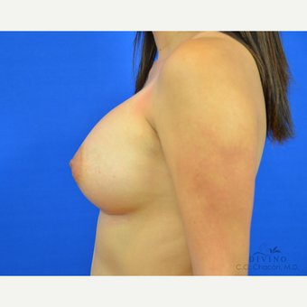 25-34 year old woman treated with Breast Augmentation after 3329387