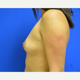 25-34 year old woman treated with Breast Augmentation before 3329387