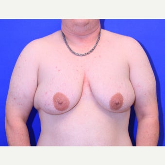 37 year old trans man treated with FTM Chest Masculinization Surgery before 2166612