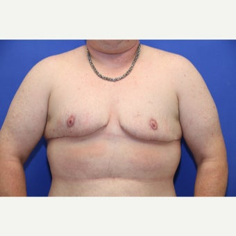 37 year old trans man treated with FTM Chest Masculinization Surgery after 2166612