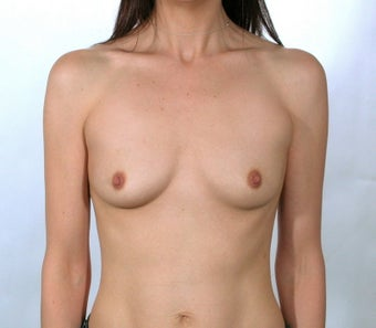 Breast Implants before 379222